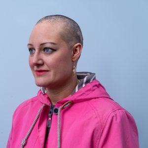 Alopecia Areata Julie